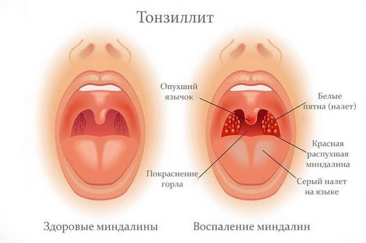 Все о том чем лечить горло при грудном вскармливании