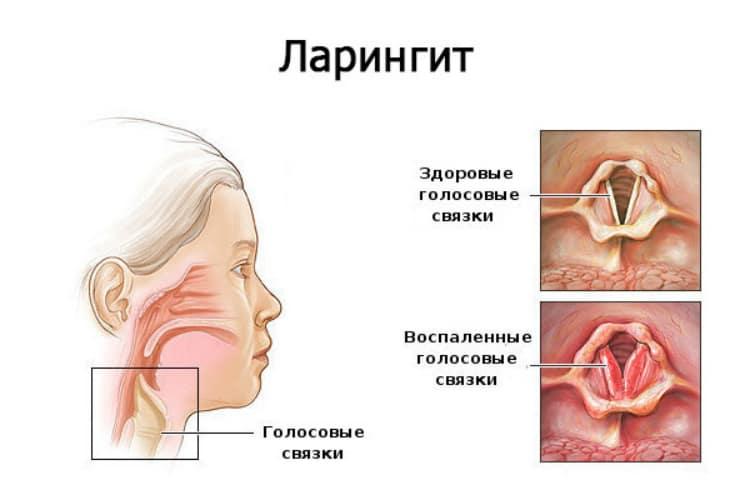 что можно от горла при грудном вскармливании