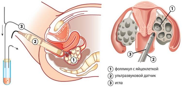 изъятие яйцеклетки