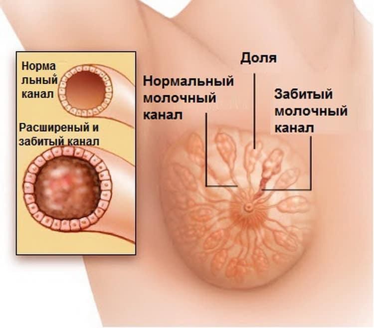Когда увеличивается грудь при беременности