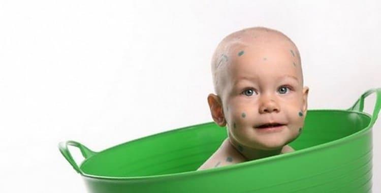 Можно ли купать ребенка при ветрянке и когда