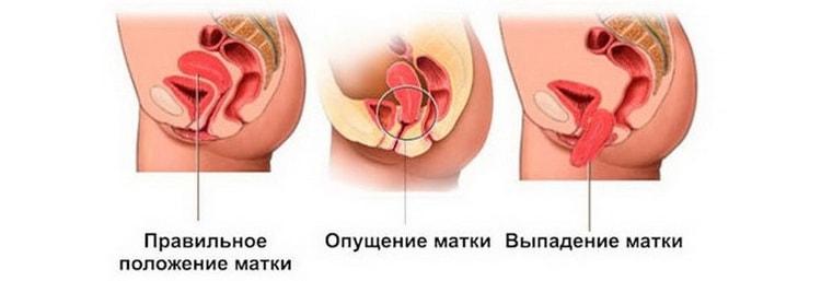 Опущение промежности при беременнести