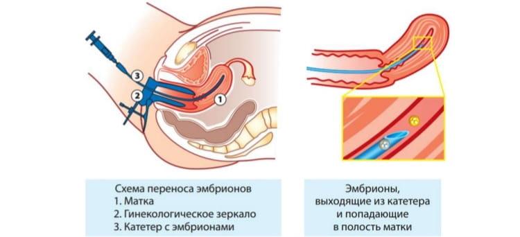 Перенос эмбриона