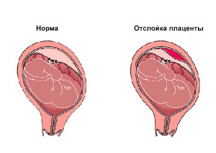 Как протекает если плацента расположена по передней стенке