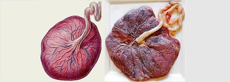 ранее старение плаценты
