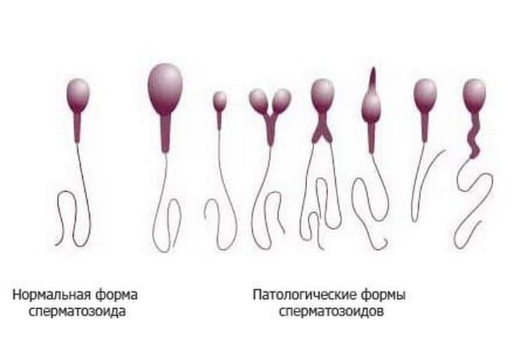 Анализ спермограммы: как правильно сдавать