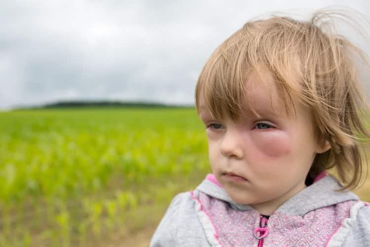 Все о том как проявляется аллергия у детей