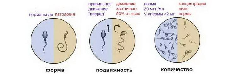 состояние и количество сперматозоидов