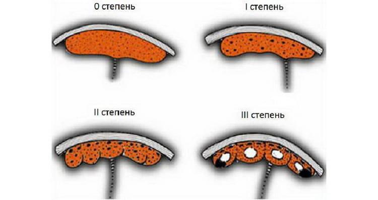 Узнайте на какой неделе уже формируется плацента