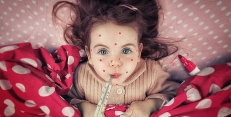 Ветрянка у детей: симптомы и лечение