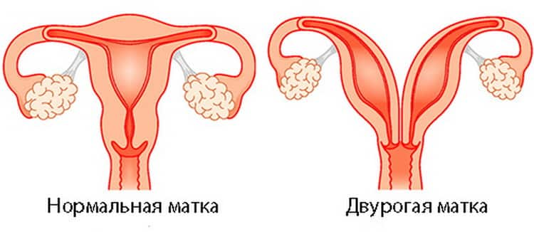 Двурогая матка причина к внутриматочной инсеминации