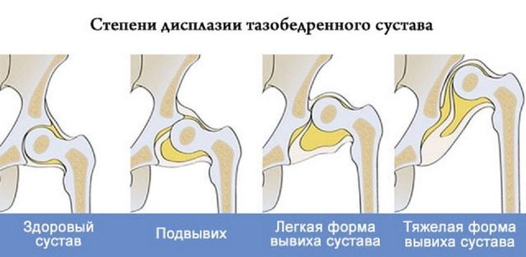 есть несколько степеней дисплазии тазобедренных суставов.