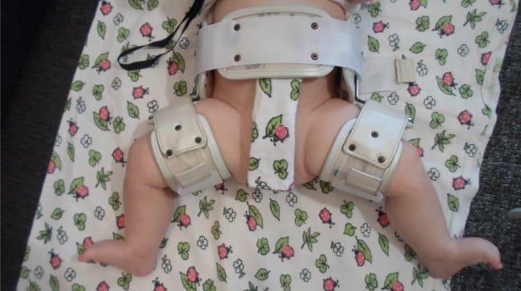 Лечение дисплазии тазобедренных суставов у грудничков может проходить и при помощи специальных ортопедических устройств.
