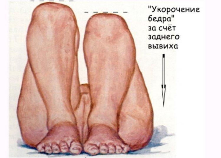 Если сложить ножки ребенка вместе и согнуть в коленях, при дисплазии можно заметить, что одно колено будет чуть ниже другого.