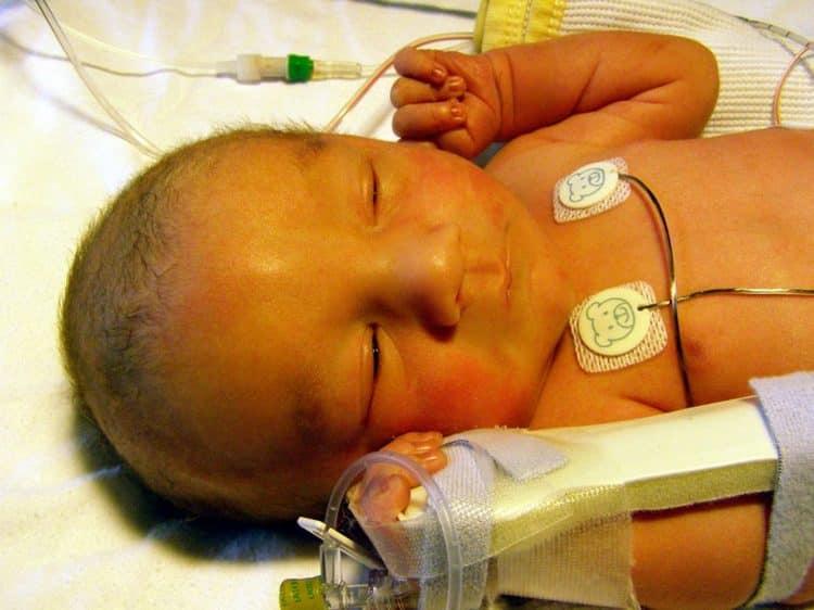 желтушная форма гемолитической болезни новорожденных характеризируется в первую очередь окрашиванием кожи и белков глаз в желтый цвет.