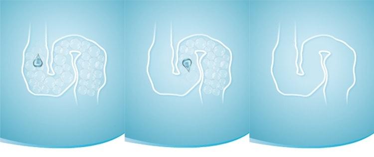 куплатон связывает маленькие пузырьки воздуха в кишечнике, и они быстрее выводятся.