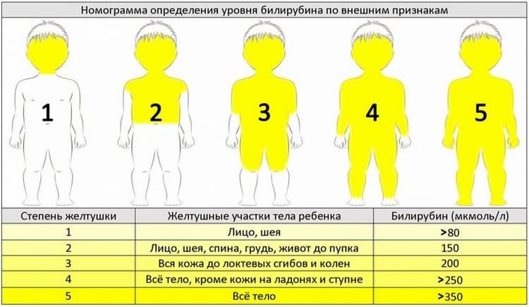 Норма и предел билирубина у новорожденных определяется также и по цвету кожи.