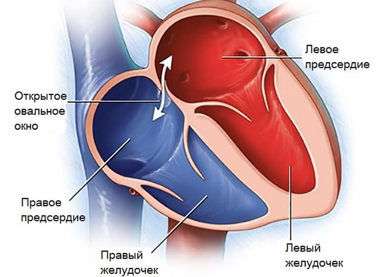 Открытое овальное окно в сердце у новорожденного не считается серьезной патологией, поскольку в большинстве случаев к пяти годам но все-таки зарастает.
