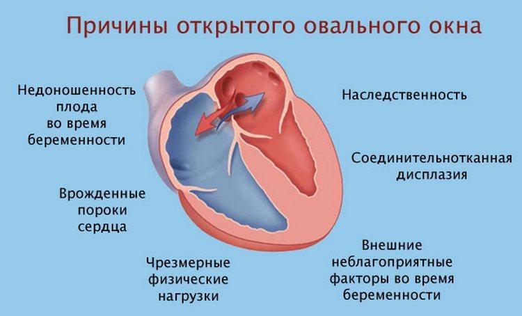 Причины ООО сердца у новорожденных до конца не установлены.