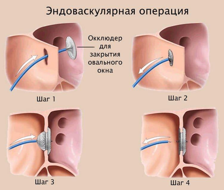 Если же окошко в сердце не зарастает, ребенку могут сделать операцию, закрыв такую дырочку специальным приспособлением.