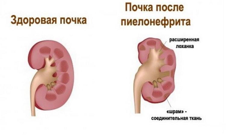 Как влияет пузырчатка новорожденных на почки