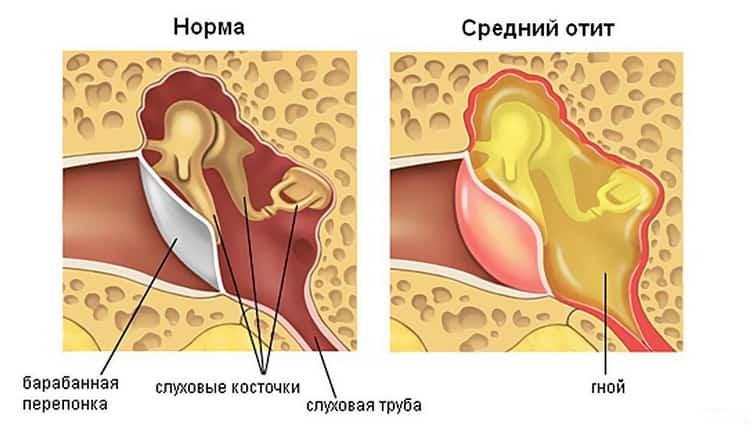 Осложнения пузырчатки новорожденных