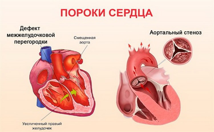 Какие пороки развития могут вызывать шумы в сердце