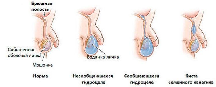На самом деле водянка у грудничка это явления довольно-таки распространенное.