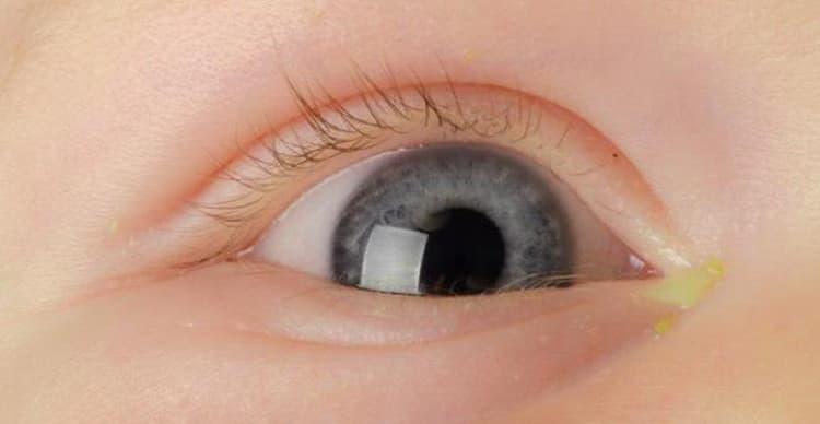 Гноится глаз у новорожденного чем лечить дома