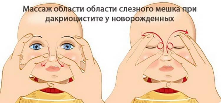 Чем промыть глаза новорожденному если гноится