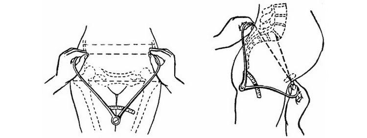 Как производят размеры таза беременной