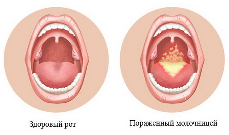 Как выглядит молочница у грудничка во рту