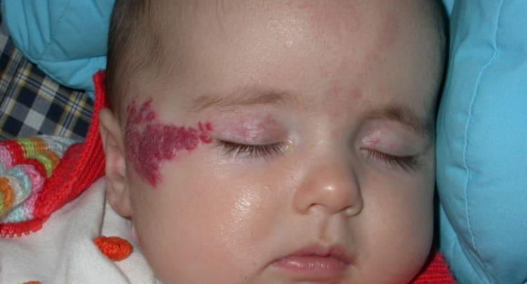 почему возникает гемангиома на лице у ребенка