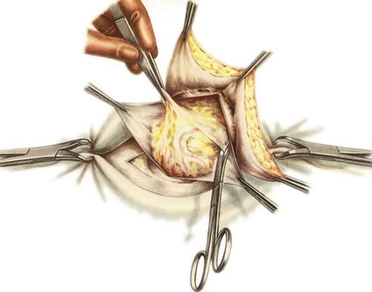 В каких случаях используется бандаж для пупочной грыжи для новорожденных