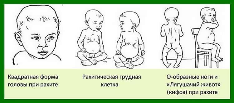 Почему большой родничок у новорожденного