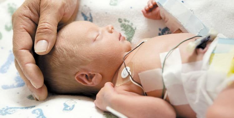 Сепсис у новорожденных: симптомы и лечение