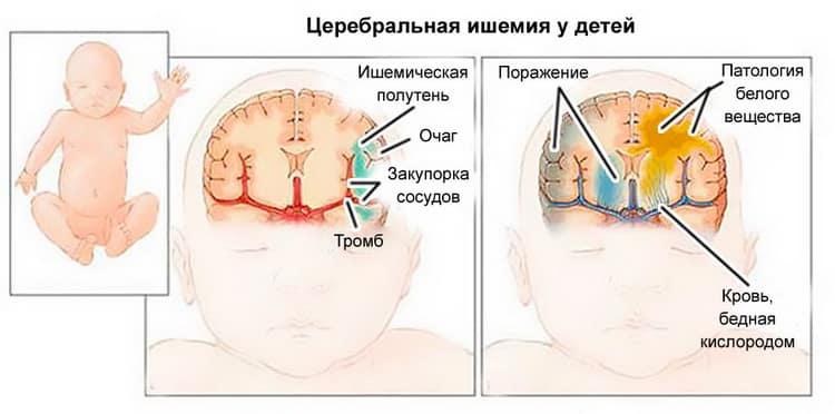 Как возникает церебральная ишемия у новорожденных
