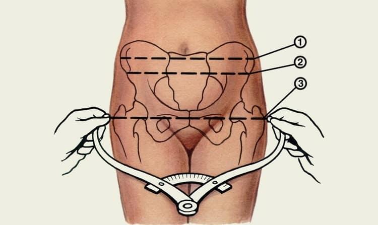 Какие размеры указывают на узкий таз при беременности