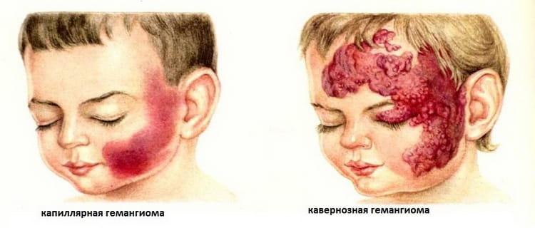 Виды гемангиомы у новорожденных на лице