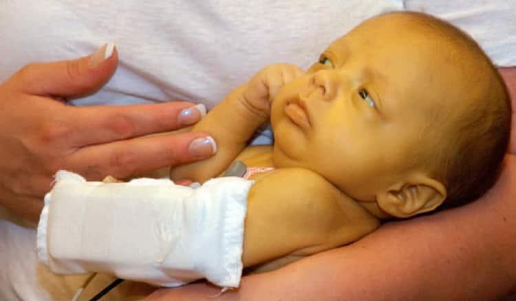 Все о том когда проходит желтушка у новорожденных