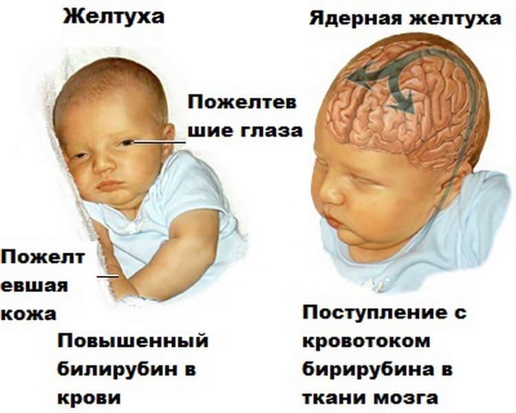 Чем опасна ядерная желтушка у новорожденных