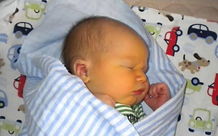 Как проявляется желтуха у новорожденных причины и последствия