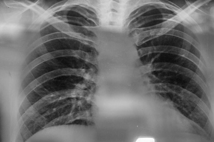 Для диагностики недуга чаще всего назначают рентген.