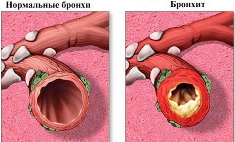 При бронхите ребенку тяжело дышать, он может ощущать боль в груди.
