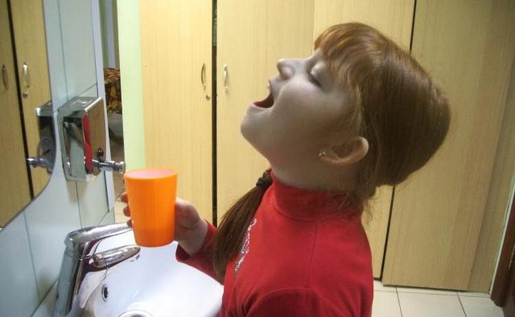 Лечение включает полоскание горла с применением антисептиков.