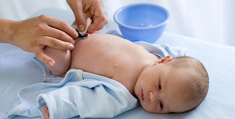 Как правильно обрабатывать пупок новорожденного