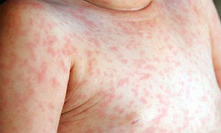 На фото показано, как выглядит сыпь при мононуклеозе у детей.
