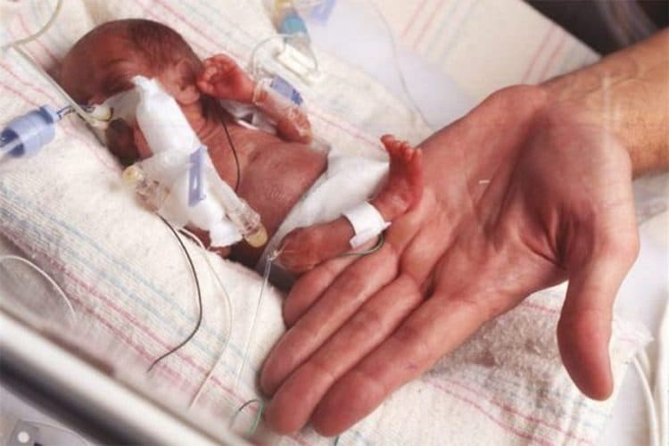 У таких малышей тело еще очень непропорционально.