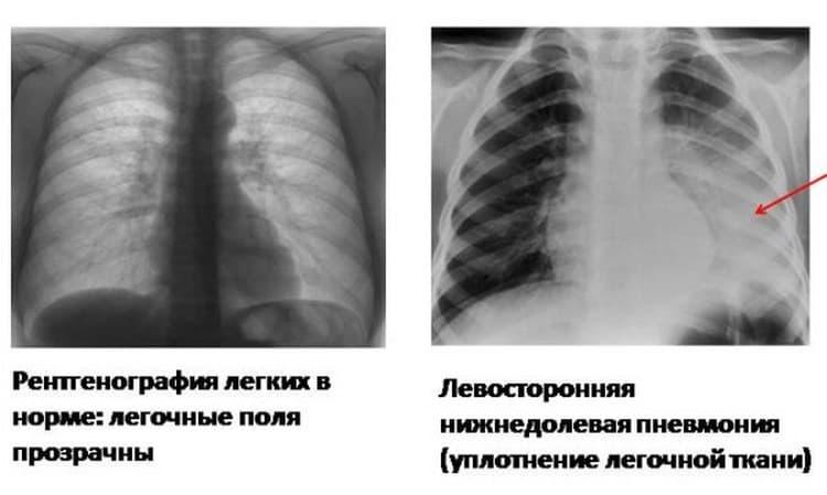 На флюорографии не всегда видны очаги пневмонии, в некоторых случаях нужны дополнительные анализы и обследования.