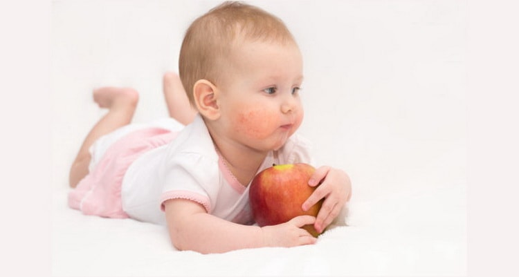 чем лечить диатез на щеках у ребенка и его профилактика
